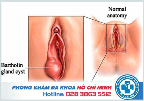Hình ảnh viêm tuyến bartholin xuất hiện khối u cứng nằm một bên