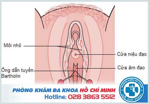 Hình ảnh viêm tuyến bartholin ở chị em phụ nữ chi tiết