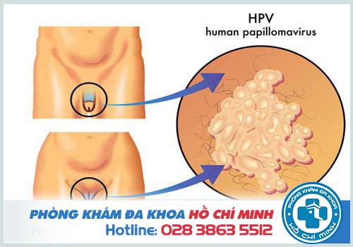 Bị nhiễm HPV có nguy hiểm không