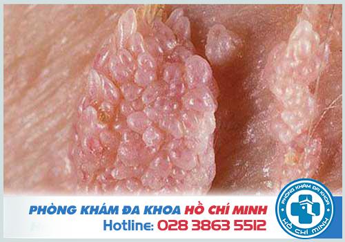 Khám chữa bệnh sùi mào gà ở bệnh viện Da liễu Trung ương TPHCM