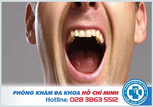 Khám khoang miệng khi hơi thở có mùi kèm theo các dấu hiệu bất thường
