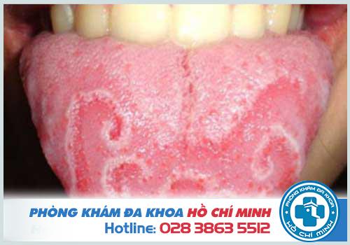 Khám lưỡi ở bệnh viện nào TPHCM thì tốt nhất