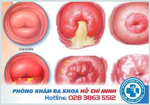 Khí hư có màu vàng xanh có thể là dấu hiệu của bệnh viêm cổ tử cung