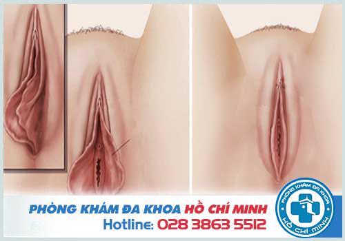 Màng trinh nằm cách cửa âm đạo khoảng 2-3cm vào bên trong