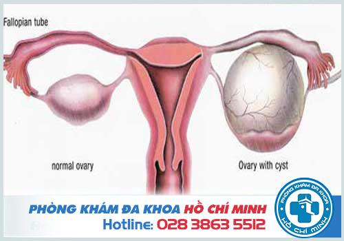 U nang buồng trứng cần được mổ khi có kích thước trên 5cm