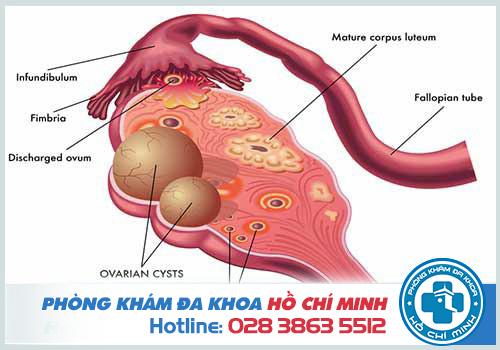 Mổ u nang buồng trứng bao lâu thì có thai được