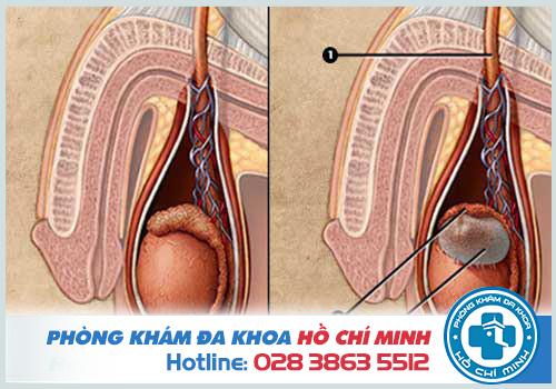 Nguyên nhân gây nang mào tinh hoàn có thể do bị ứ đọng dịch tiết