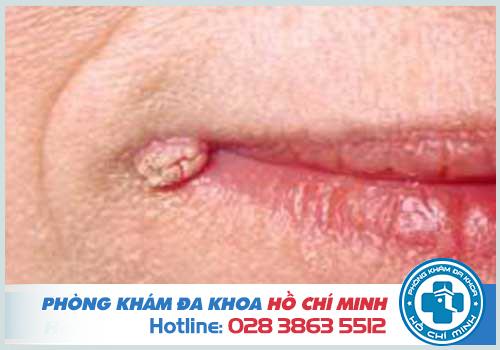 Ngứa 2 bên mép miệng là dấu hiệu của bệnh sùi mào gà