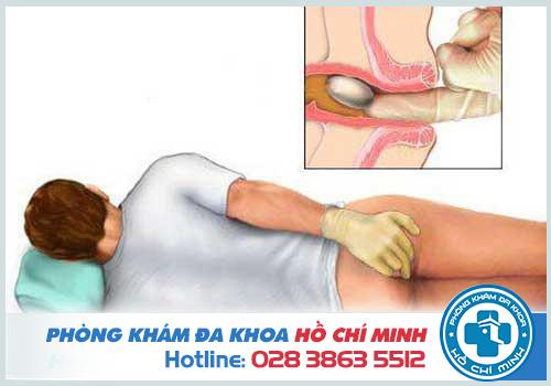 Trĩ nội hình thành bên trong ống hậu môn và gây đau đớn cho người bệnh