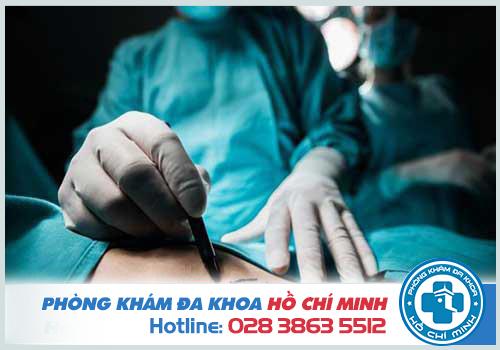 Điều trị giãn tĩnh mạch thừng tinh bằng phẫu thuật