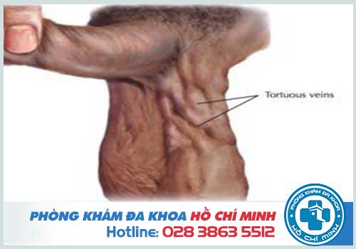 Giãn tĩnh mạch thừng tinh nặng biểu hiện ra bên ngoài