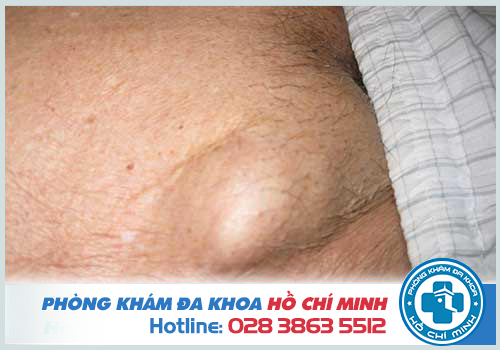 Vùng kín nổi hạch là báo hiệu của bệnh tật