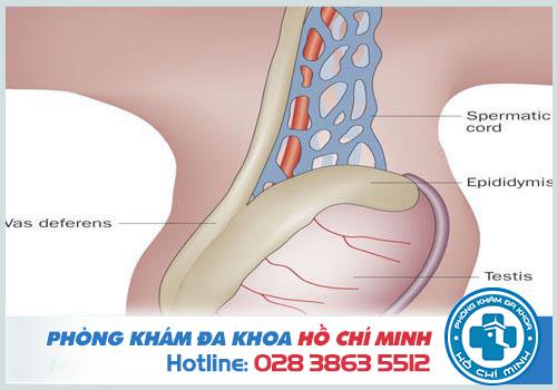 Điều trị giãn tĩnh mạch thừng tinh ở đâu TPHCM