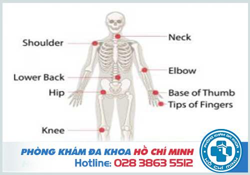 Phòng khám tốt ở Sài Gòn có bác sĩ giỏi về chuyên khoa Cơ Xương Khớp