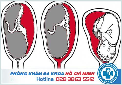 bệnh viện phá thai ở Hóc Môn uy tín an toàn