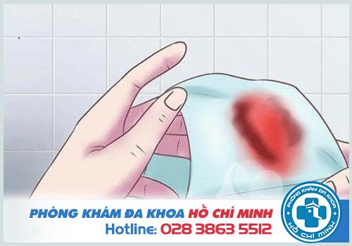 Polyp âm đạo gây ra xuất huyết bất thường