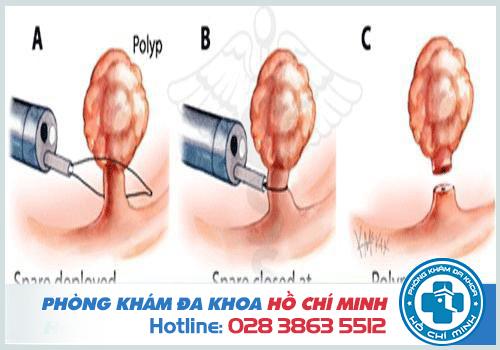 cắt polyp cổ tử cung có sao không