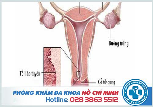 Sa cổ tử cung là gì? Có nguy hiểm không