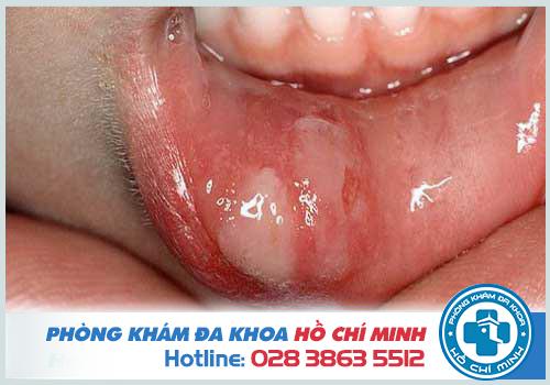 Biểu hiện săng giang mai ở miệng