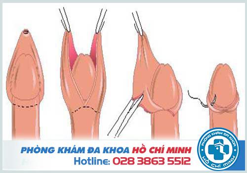 Bạn biết gì về quy trình cắt bao quy đầu?