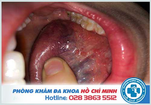 Sùi mào gà ở lưỡi có thể chữa được nhưng cần kiêng trì