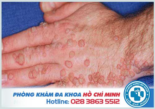 Bệnh sùi mào gà ở tay và cách chữa trị đơn giản tại nhà