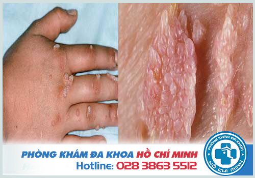 Bệnh sùi mào gà ở tay có biểu hiện gì
