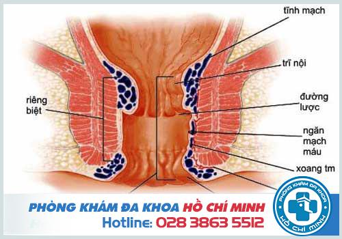 Bệnh trĩ hỗn hợp là kết hợp giữ trĩ nội và ngoại