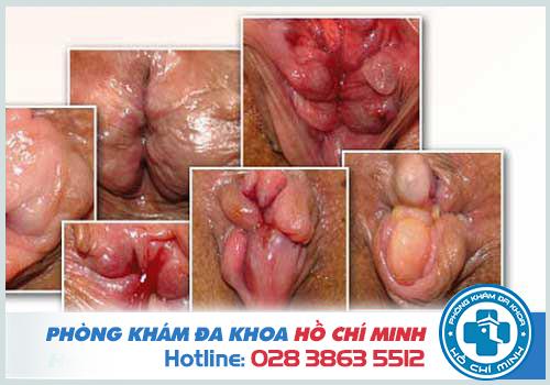Bệnh trĩ hỗn hợp do bị bệnh trĩ không được chữa trị