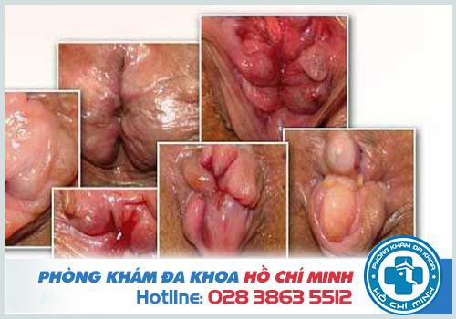 Triệu chứng và tác hại của u nhú hậu môn như thế nào