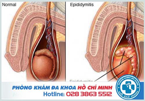 Viêm mào tinh hoàn có thể là nguyên nhân dẫn đến tinh trùng màu nâu đỏ