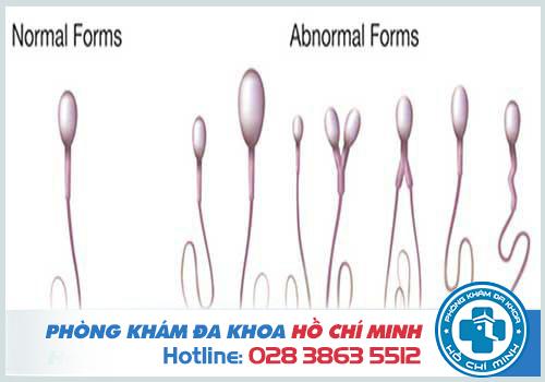 Cấu tạo tinh trùng bình thường và các dạng tinh trùng bất thường