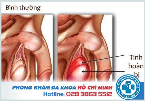 Tinh trùng vón cục trong suốt có thể là dấu hiệu của viêm mào tinh hoàn bị viêm