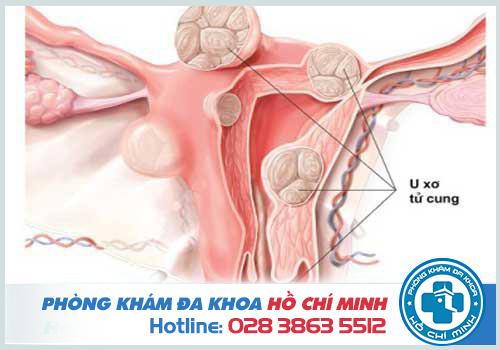 Chậm kinh có thể do bị mắc u xơ tử cung