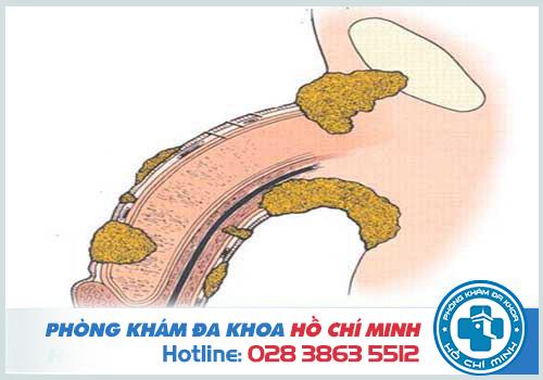 Ngứa dương vật là biểu hiện thường thấy ở người viêm bao quy đầu