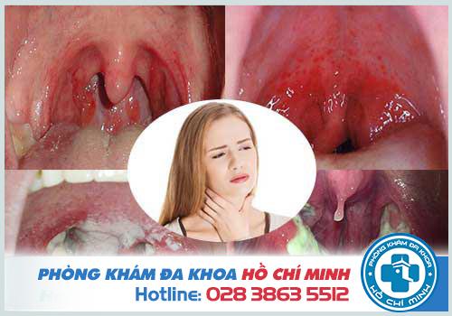 Viêm họng uống kháng sinh gì tốt nhất