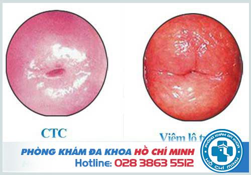 Viêm lộ tuyến cổ tử cung diện rộng có nguy hiểm không