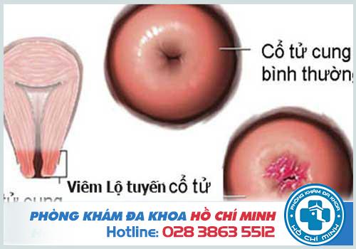 Viêm lộ tuyến cổ tử cung là gì? Nguyên nhân Dấu hiệu và Cách chữa trị