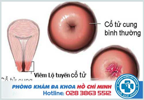 Chữa viêm lộ tuyến cổ tử cung bằng đông y