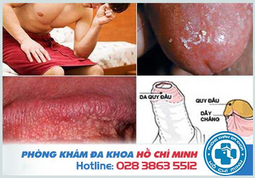 Rách bao quy đầu gây ra tình trạng viêm loét bao quy đầu