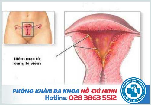 Viêm nhiễm phụ khoa ở tử cung