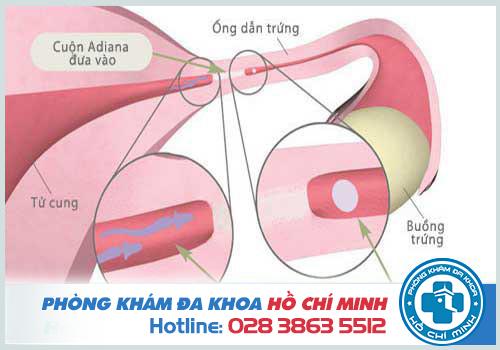 Viêm ống dẫn trứng là do vòi trứng nhiễm khuẩn