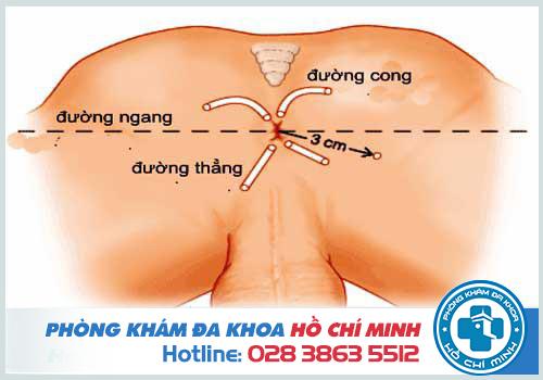 Viêm ống hậu môn có thể do bệnh rò hậu môn