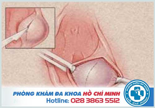 Viêm tuyến bartholin có nguy hiểm không và tác hại của bệnh