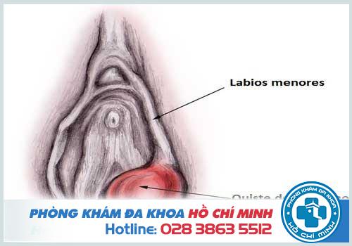 Viêm tuyến bartholin do bị tắc ống tuyến