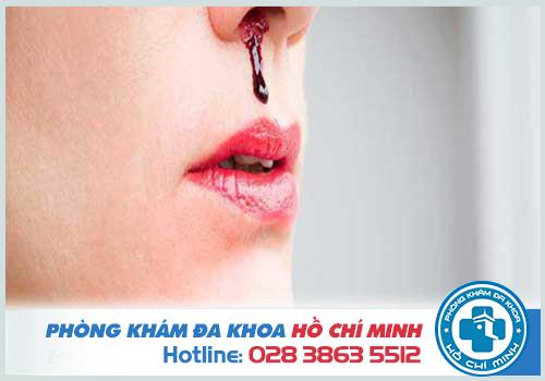 Viêm xoang mũi chảy máu nguy hiểm nếu không chữa trị