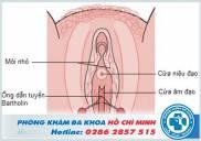 Hình ảnh viêm tuyến bartholin ở chị em phụ nữ