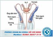 Phẫu thuật điều trị giãn tĩnh mạch thừng tinh ở đâu TPHCM